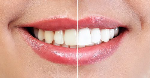 teeth whitening 32smiles 500x259