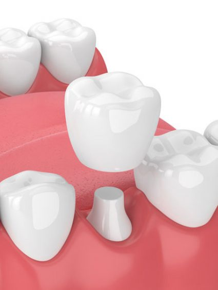 Dental-Crowns_2